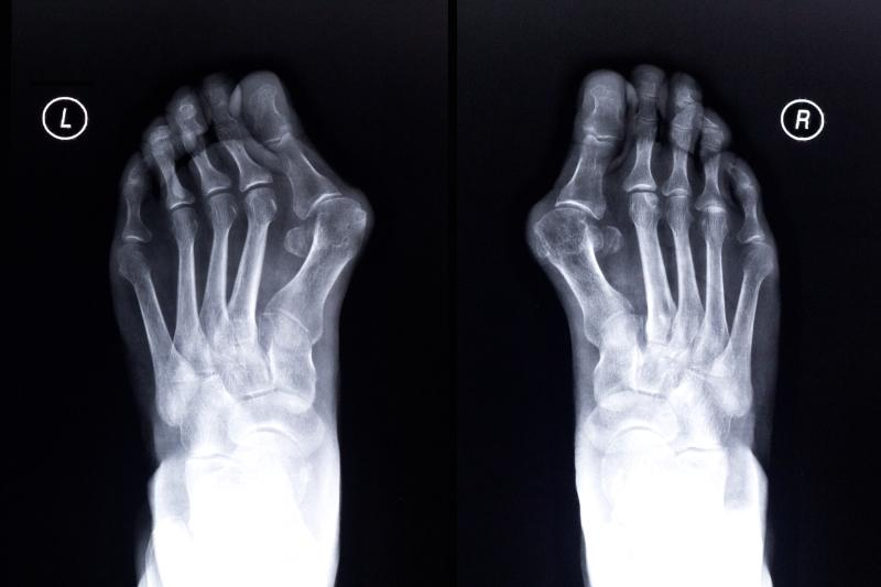Bunions - Feet in Focus